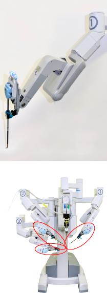 医療ロボット ダヴィンチ
