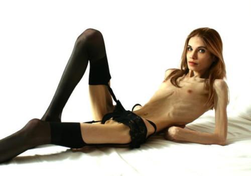 【閲覧注意】拒食症の女性の全裸が見るに堪えないんだが。。。